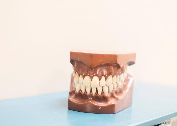 Dantų protezavimas – paneikime mitus!